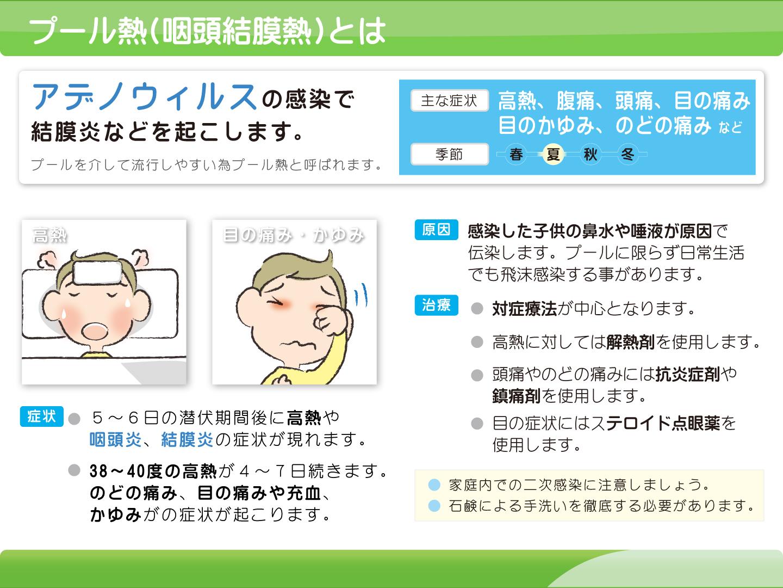 プール熱(咽頭結膜熱)とは アデノウィルスの感染で結膜炎などを起こします。
