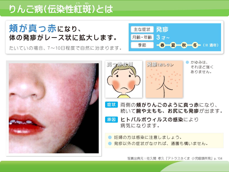 りんご病 頬が真っ赤になり、体の発疹がレース状に拡大します。